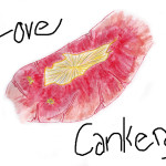 Love Cankers